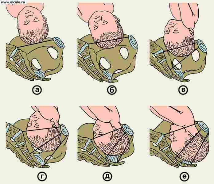 Что делать чтобы головка ребенка вошла в таз